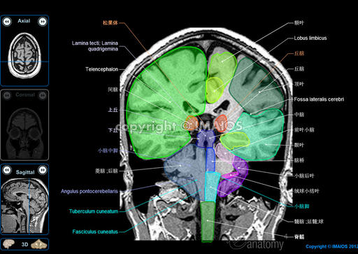Anatomy of the encephalon in MRI (axial, coronal and sagittal slices)