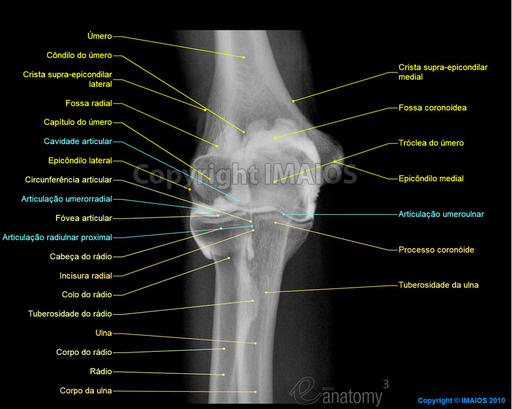Elbow : Arthrogram