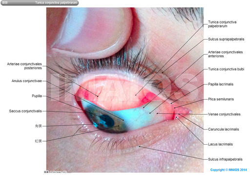 Palpebral conjunctiva-Photos: Superior eyelid; Upper eyelid, Posterior surface of eyelid, Lacrimal caruncle