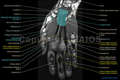 Carpal tunnel, Dorsal digital nerves, Joints of hand