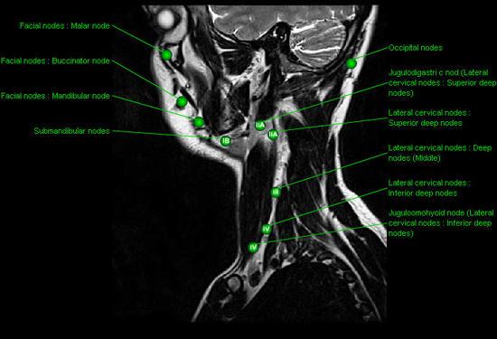 Le lumbago et au dessous du ventre chez les femmes dans 30 semaines