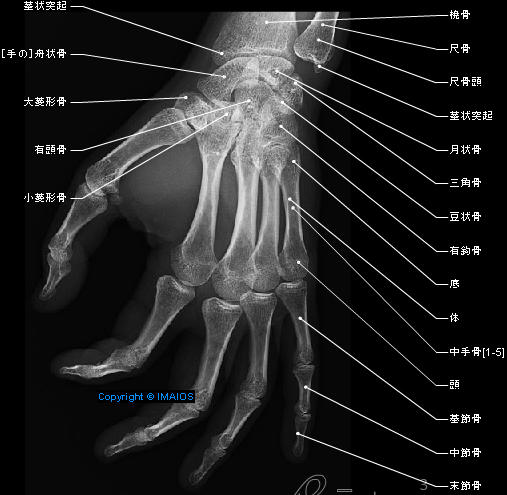 Radiography - Hand - Digiti manus : Metacarpals [I -V],  Digital bones; Phalanges,  Proximal phalanx,  Middle phalanx,  Distal phalanx,  Sesamoid bones, Carpometacarpal joints,  Intermetacarpal joints,  Metacarpophalangeal joints,  Interphalangeal joints of hand