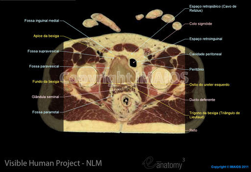 Abdominopelvic cavity : Urinary system (Urinary bladder, Ureter), Male genital system
