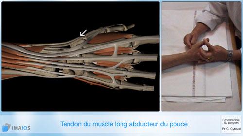 comment renforcer les tendons du poignet